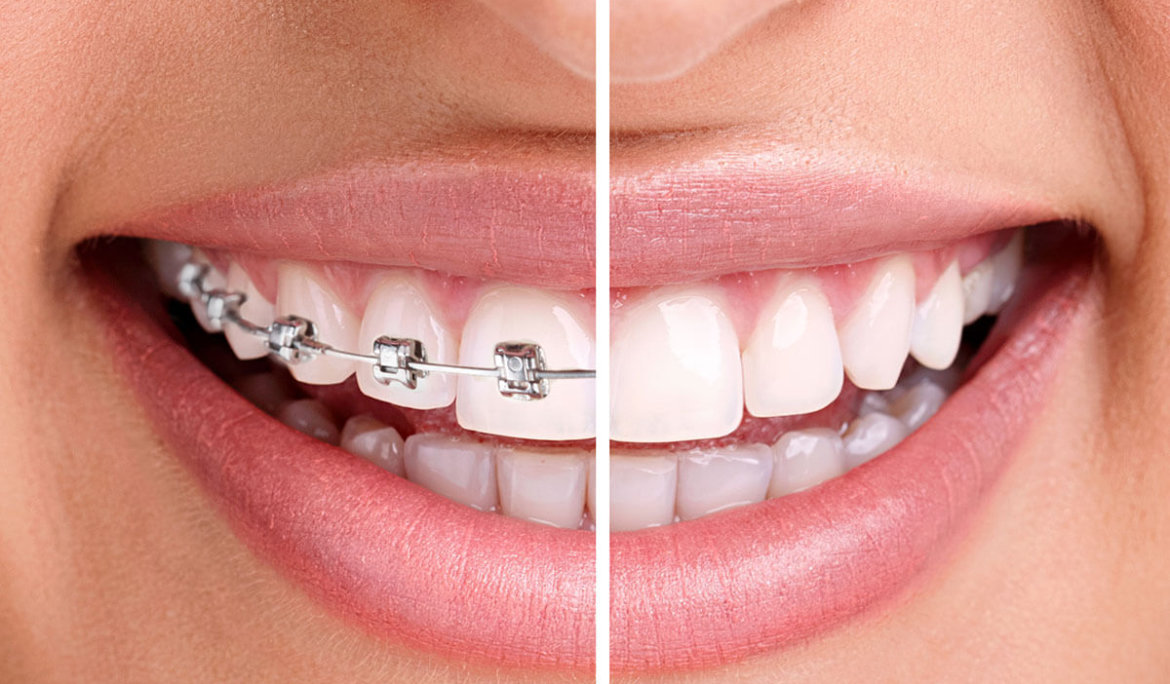 The best way to straighten your teeth and look good today!